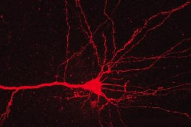 neuron-red-laser_large