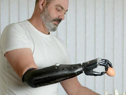 Terminator Tech: Cool New Prosthetic Types, Ties Knots and Cracks Eggs