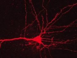 New Study Can Turn Cocaine Addiction On and Off in Rats With Lasers