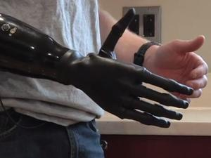 Researcher Creates Prosthetic Limb Controlled By Muscles