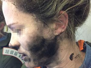 Woman suffers burns to her face, hands and neck after headphones explode mid-flight